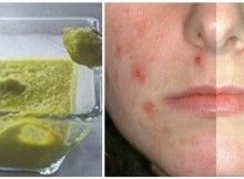 If you have problematic skin prone to acne, pimples and redness then you are in the right place. Did you like the post? Share it to your friends.