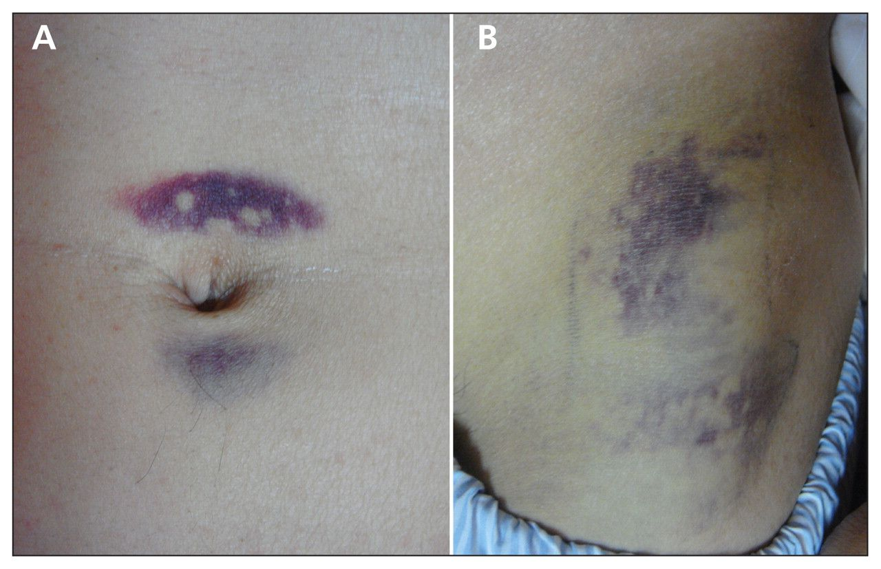 (A) Periumbilical ecchymosis (Cullen sign) and (B ...
