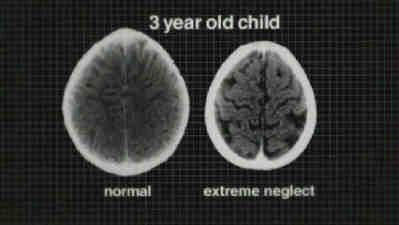 Extreme Neglect of Genie the Los Angeles Wild Child who