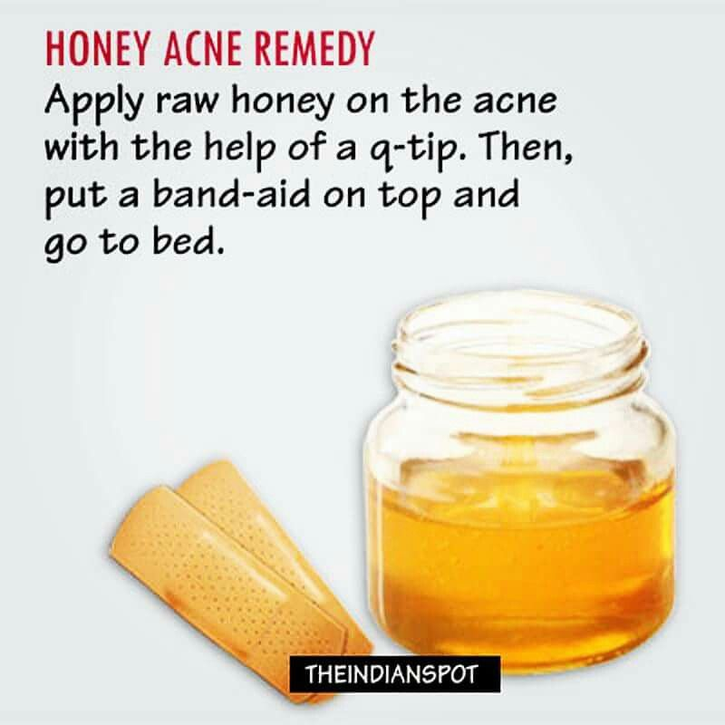 overnight acne treatment