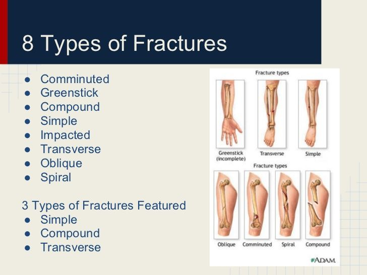Fracture Types Of Fractures Pinterest Types Of Fractures And