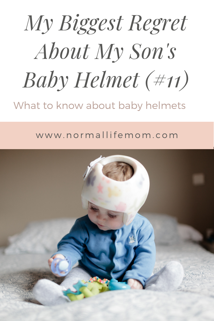 What Parent S Need To Know About A Baby Helmet Baby Helmet Baby Development Activities Flat Head Baby