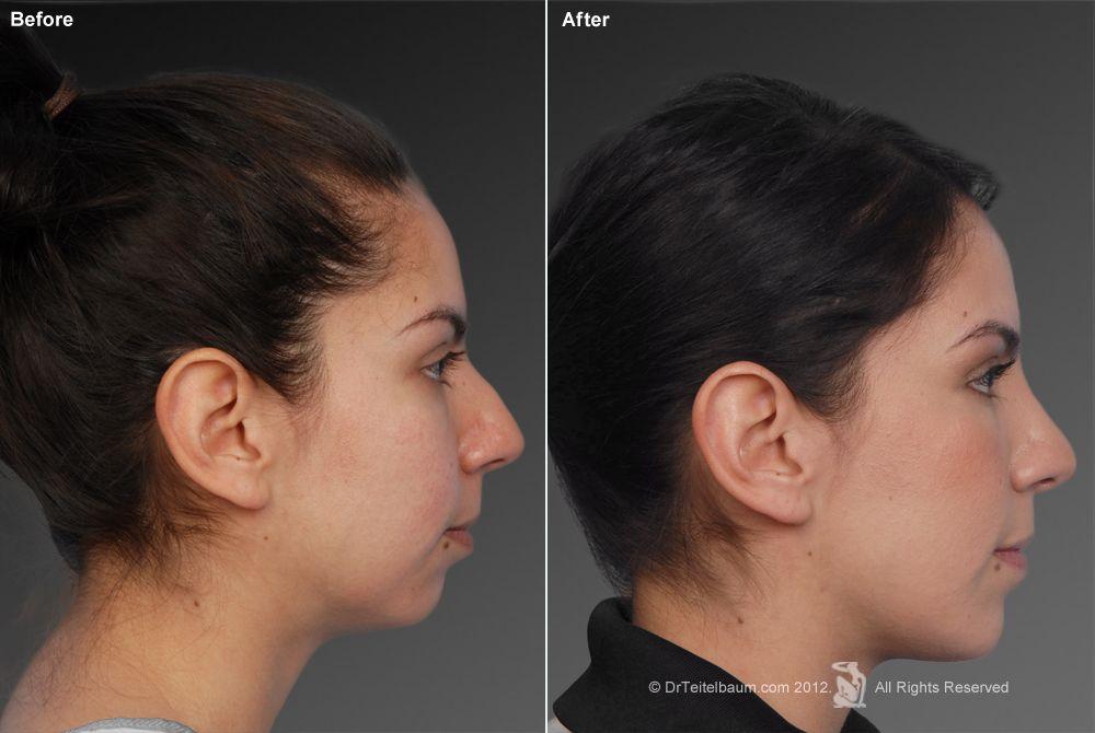 small chin Sök på Google Chin implant, Weak chin