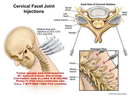 Cervical Facet Joint Injections Medical Pinterest Medical