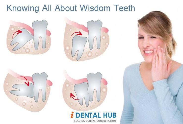 Wisdom tooth are the last to erupt in oral cavity  They are