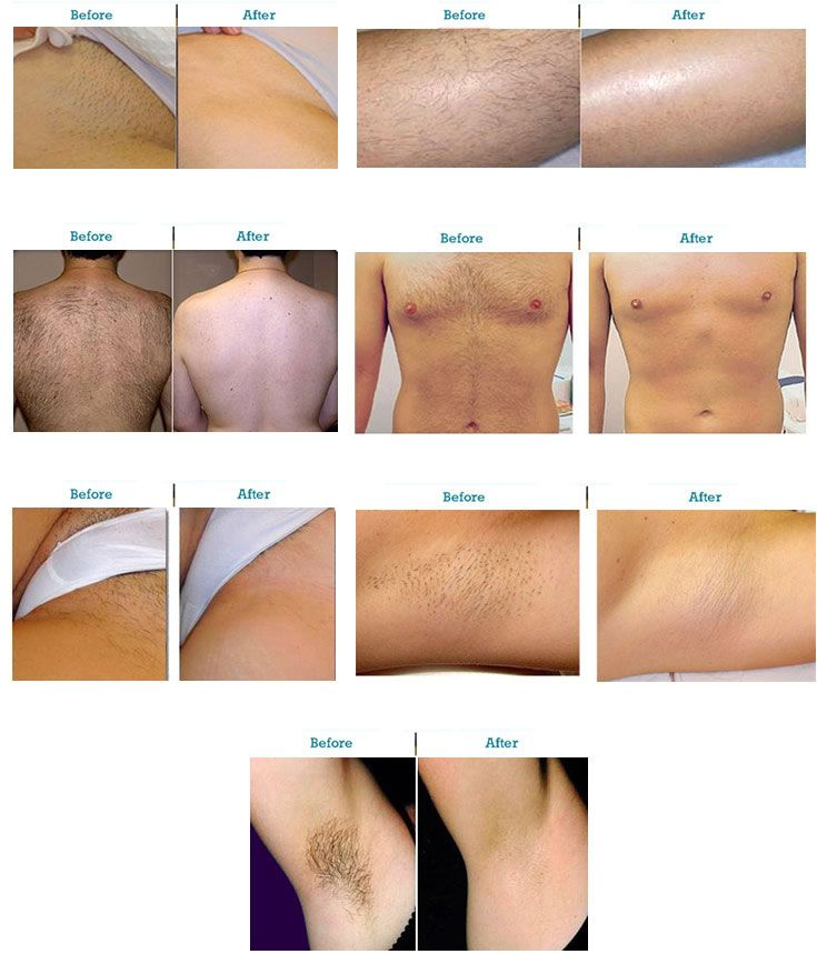 Before And After Results Of Laser Hair Removal Using The Gold