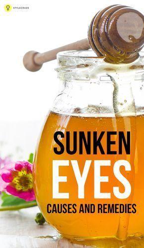 Sunken Eyes – Causes And Remedies | Sunken eyes, Remedies ...