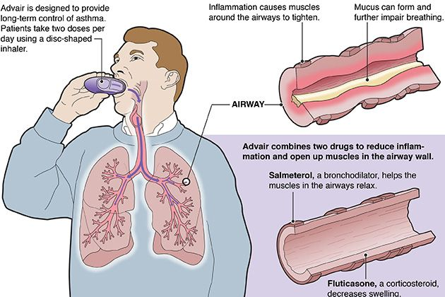 Overuse Safety Questions Cloud Advair S Ascent To Asthma Blockbuster Asthma What Is Asthma Asthma Symptoms