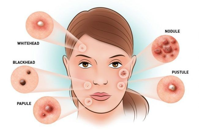 How To Get Rid Of Acne Overnight?