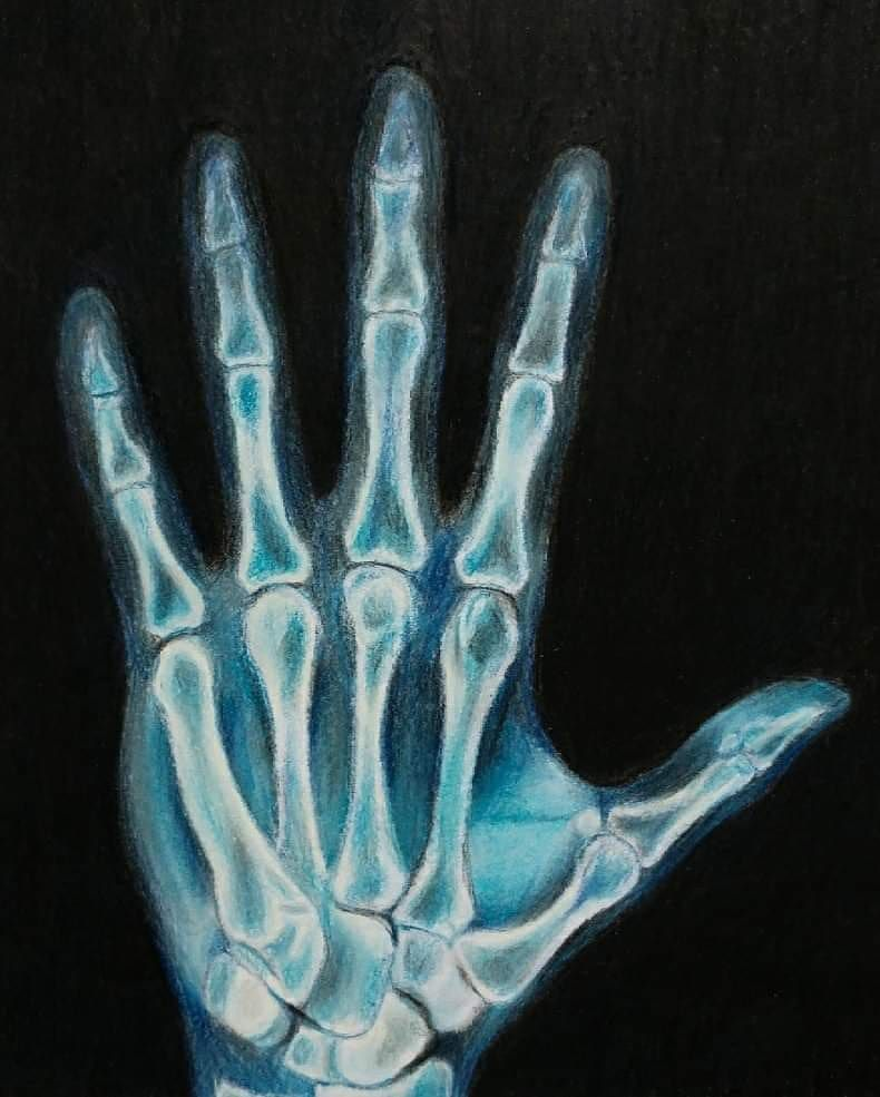 X-ray Drawing