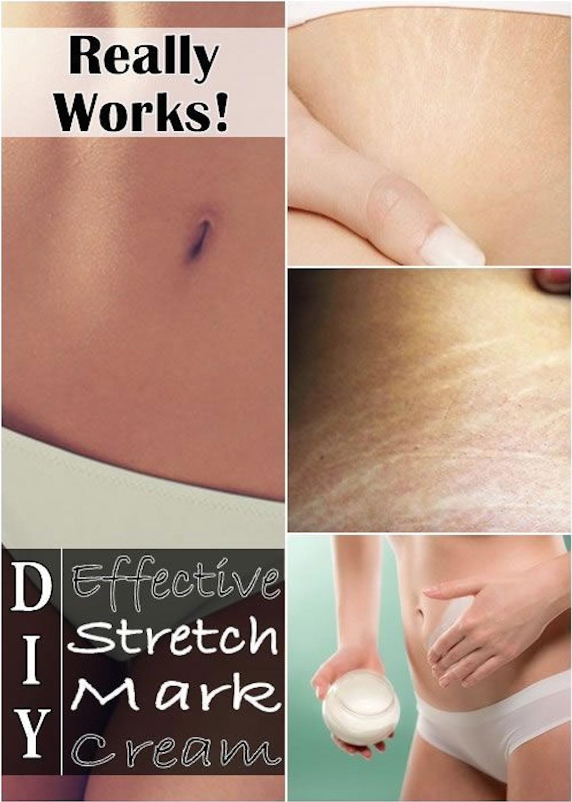 DIY effective Stretch Mark Cream  DIY  Pinterest  Stretch marks