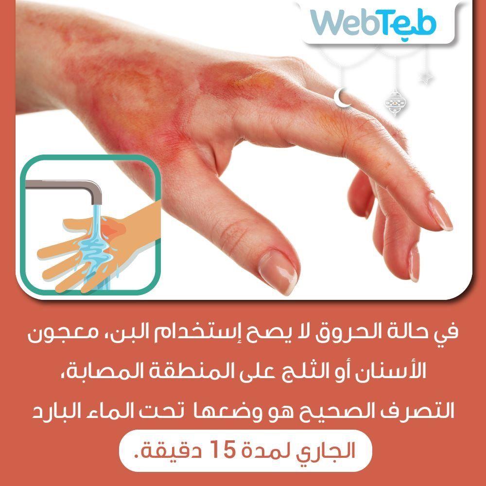 الحروق Health Remedies Healthy