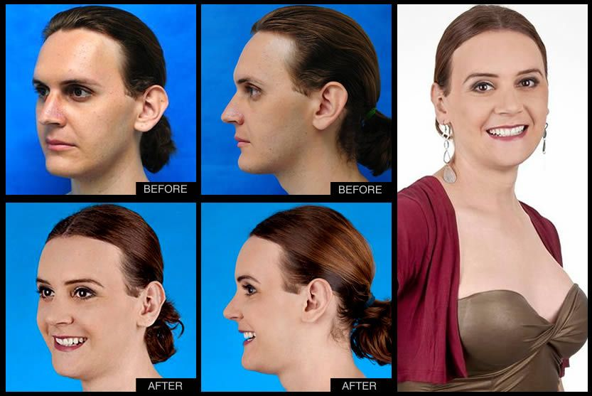 Before  After 2013  Facial Feminization Surgery -3301