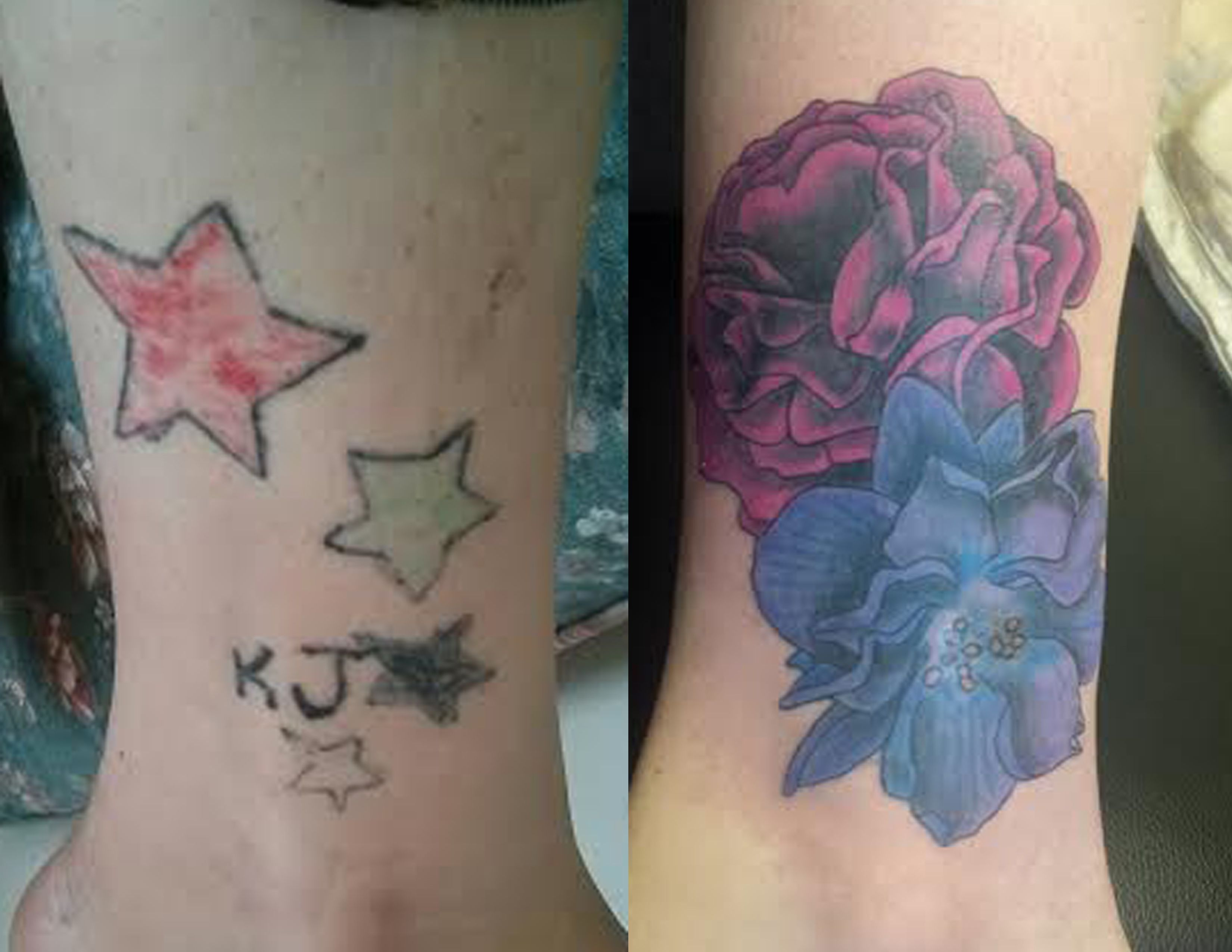 Flower Cover Up Before And After Cover Up Tattoos Cover Tattoo