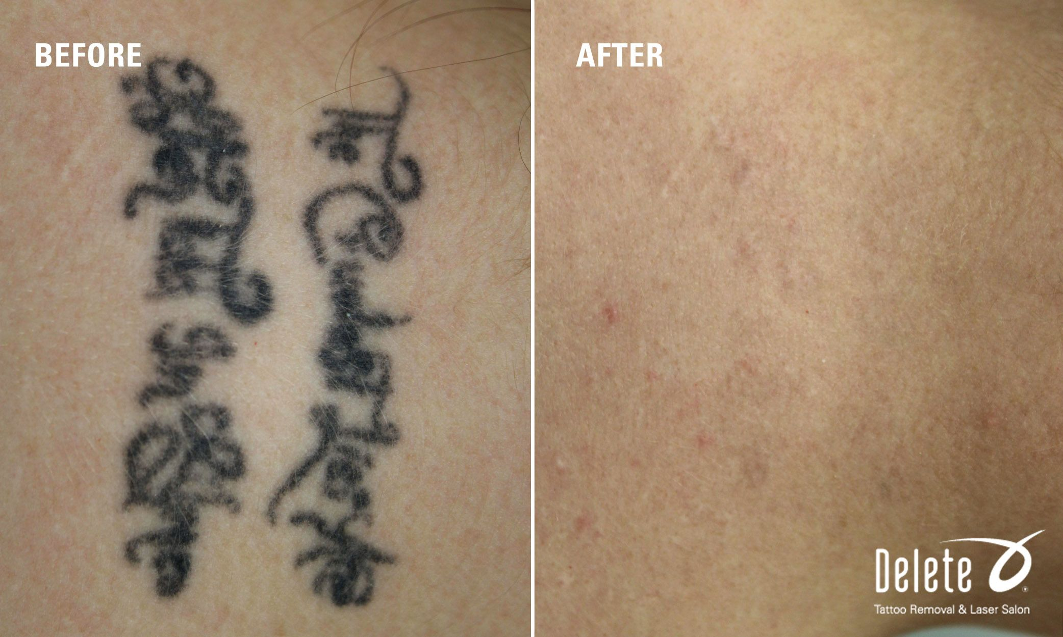 Here Is This Week S Before After Laser Tattoo Removal From Our Physicians With The Picoway Laser This Back Of The Neck Tattoo Is One Of The Easiest Type O