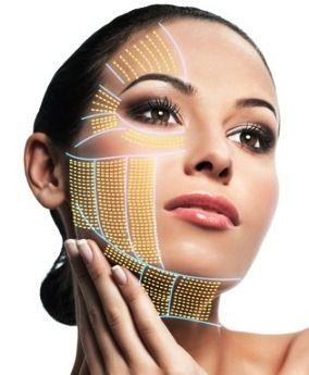HIFU (HIGH INTENSITY FOCUS ULTRASOUND) | Aesthetic centre | Facial
