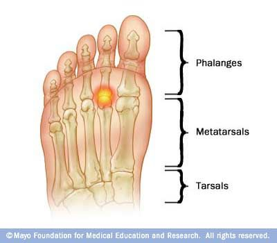metatarsalgia: excess pressure on your forefoot can cause pain and  inflammation in your metatarsals — the long bones in the front of your feet,