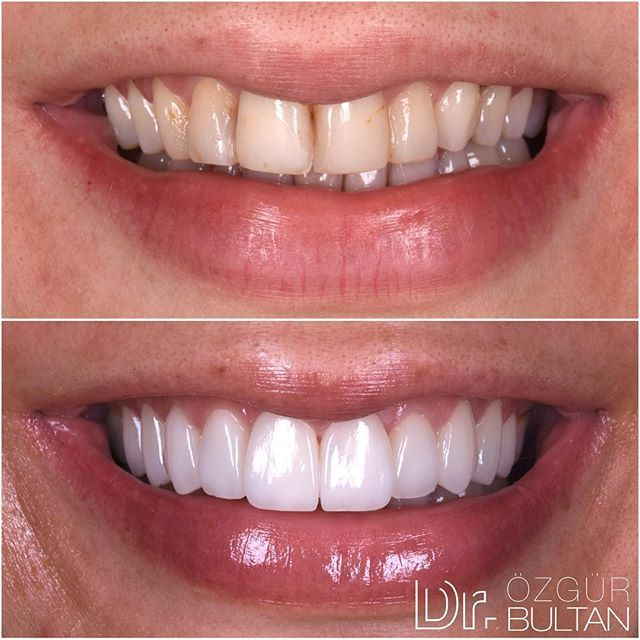 Ips E Max Laminate Veneers Were Placed To Brighten And Widen The Smile Ips E Max Lamina Venerler Ile Gulus Tasarimi E Dentistry Dental Implants Cost Dentist