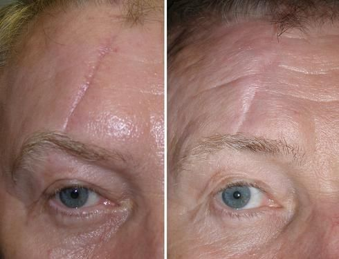Think, that facial scarring treatment topic simply