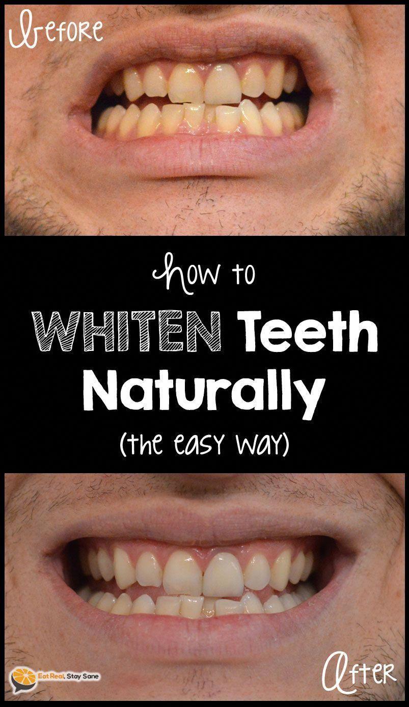 Pin on Whiten Your Teeth
