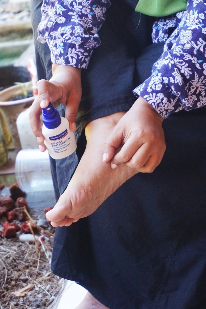 cara membersihkan luka yang benar