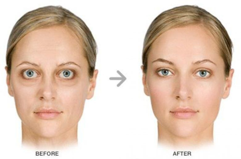 Sunken Under Eye Hollows -- Continue with the details at the image