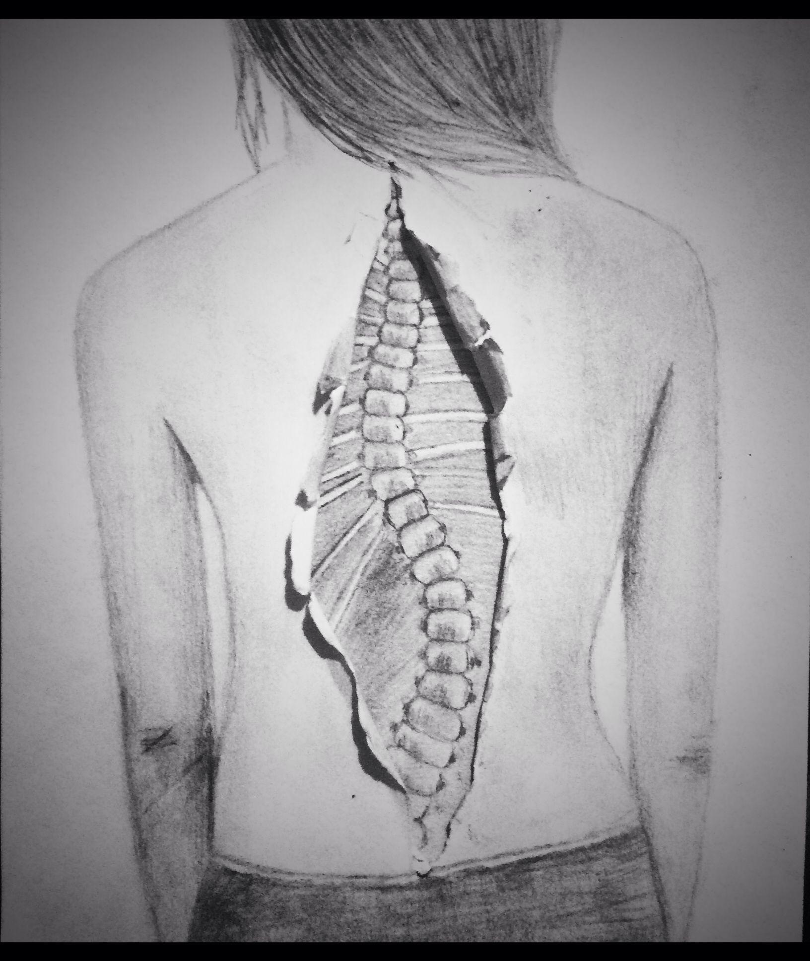 skoliozis és ízületi fájdalmak)