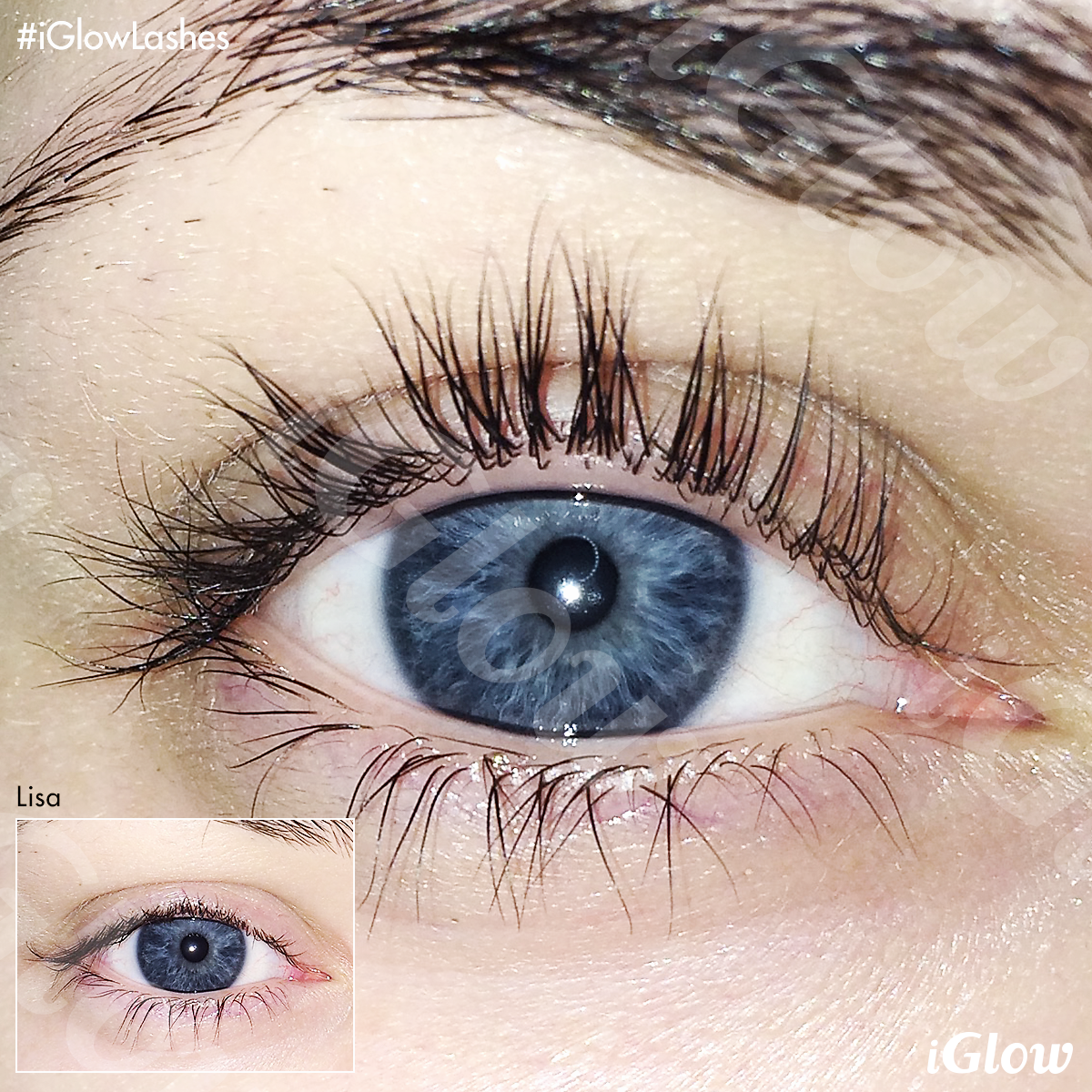 c1cdfcfb792 Long Lashes Serum - Vippeserum | iGlow Long Lashes Serum | Long lashes,  Lashes og Serum