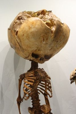 This museum is rotten with a century of wax medical deformities
