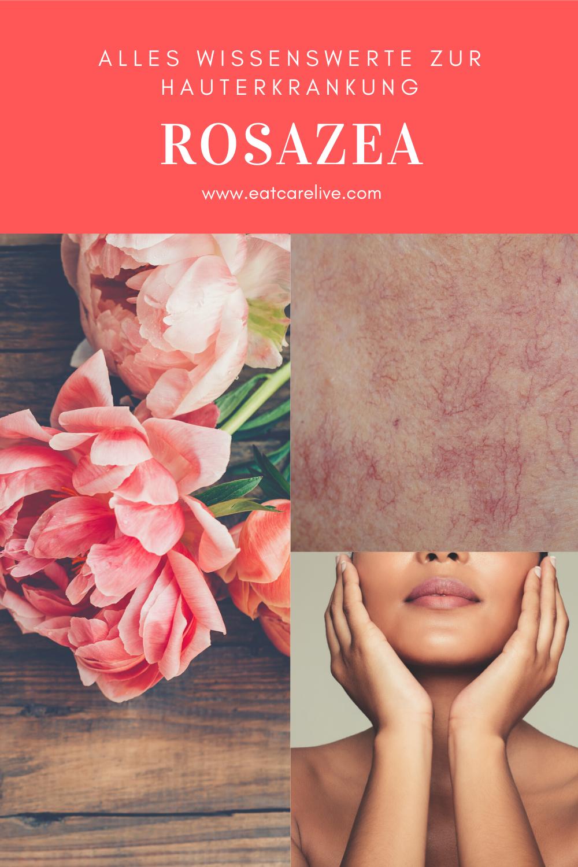 Rosazea Therapie