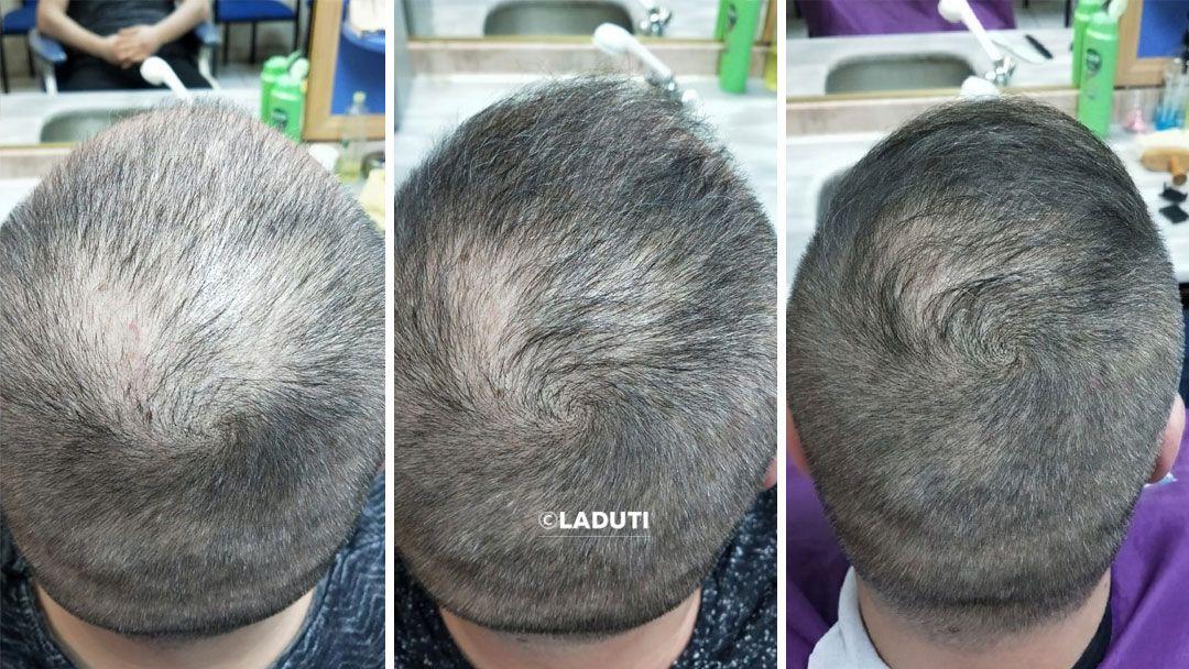 Laduti Mittel Gegen Haarausfall Mittel Gegen Haarausfall Haarausfall Haare