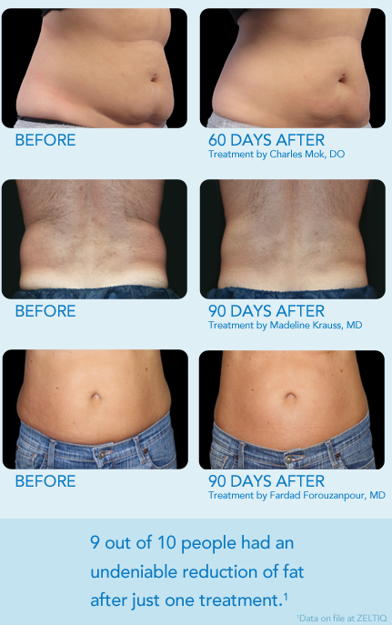 Before And After Coolsculpting Treatment Laser
