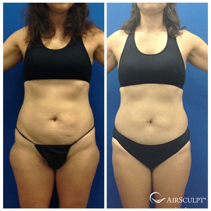 Pin On Airsculpt Before After Elite Body Sculpture