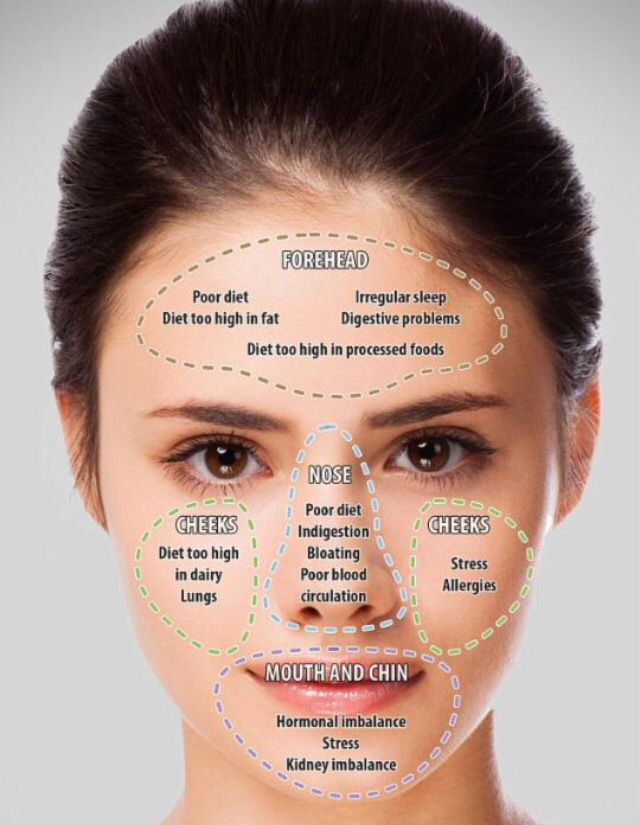 face mapping your acne and what it means on your face revealed