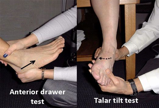 Anterior Drawer Tests Ligamentous Instability Atf 20 Pf Pull Talus Anterior Excessive Ant Glide Talar Tilt Calcaneofibular Ligament Ankle In Neutr
