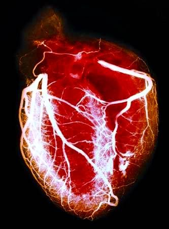 angiografía coronaria. Angiografía que muestra los detalles de las ...