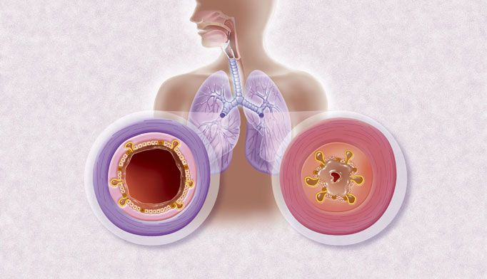 What is chronic bronchiectasis?
