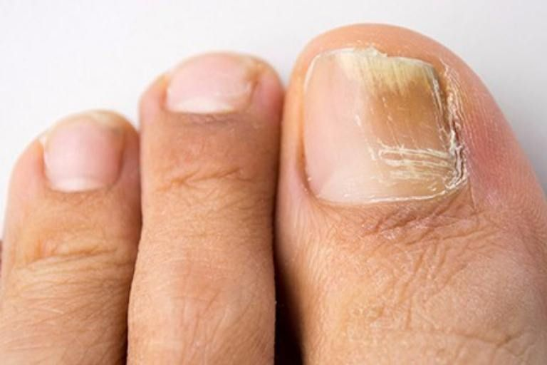 Nail fungus is infection of the skin under the nail. As the name ...