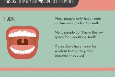 Confused Wisdom Teeth Dry Socket #DentalimplantsBurnaby # ...