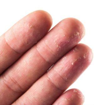 14+ Why is my skin peeling on my hands ideas