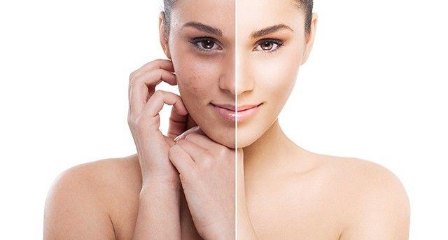 Renueva tu piel | Blanquear la piel, Como mejorar la piel, Cuidado facial