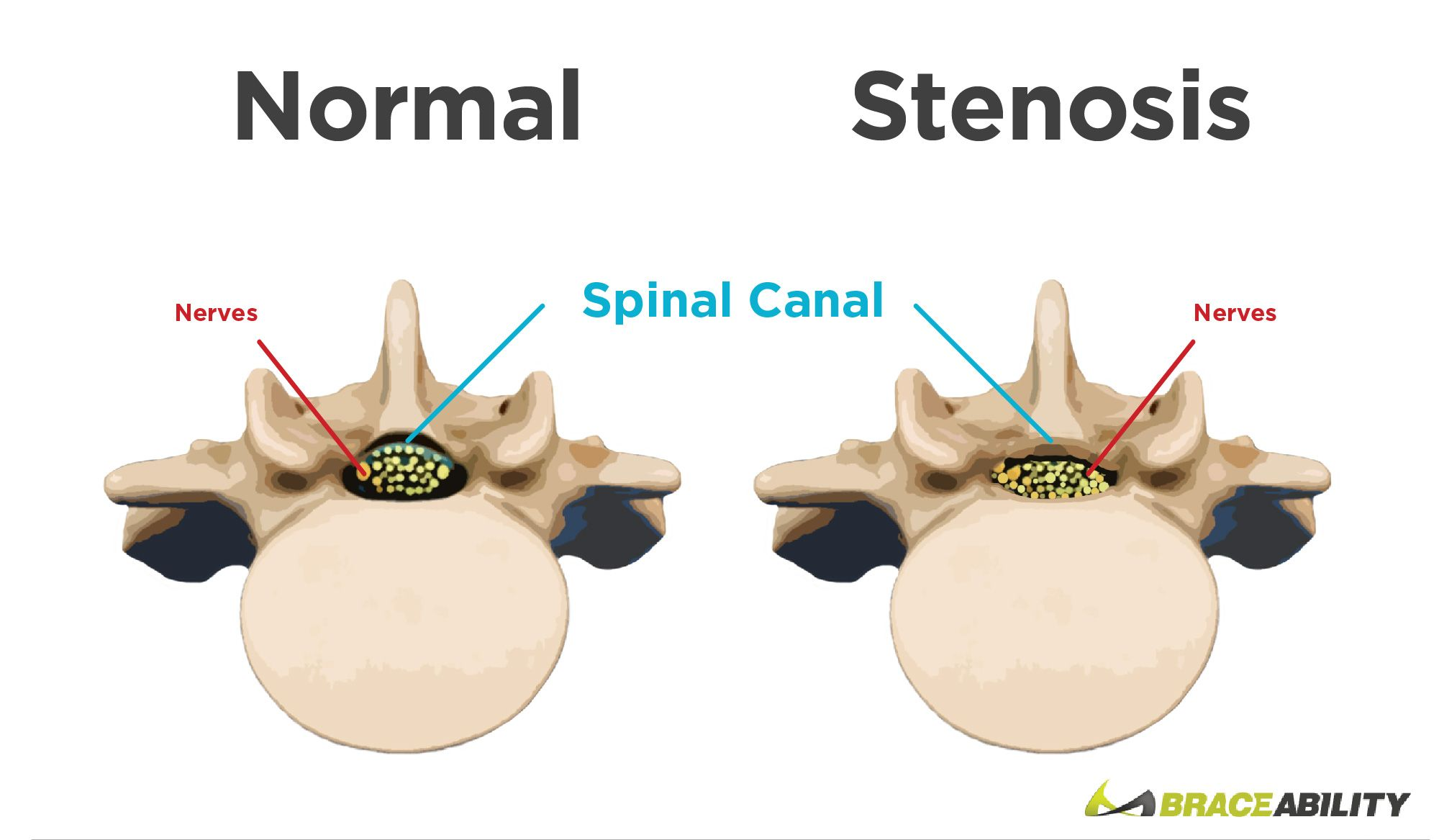 Normal spinal canal vs. spinal stenosis | bakım | Pinterest | Spinal ...