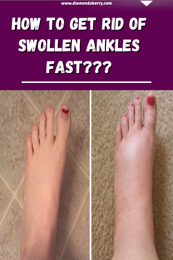 how to get rid of swollen feet and ankles fast