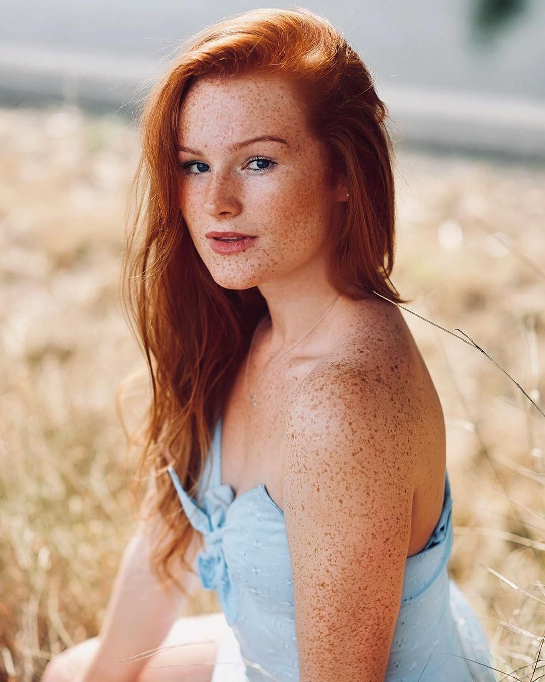 pale Sexy redheads freckled