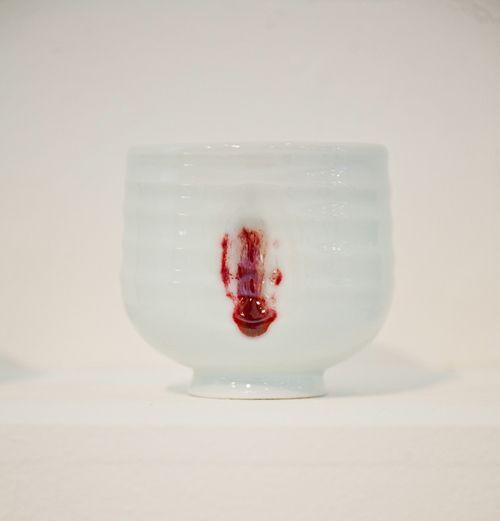 Finger Vessels