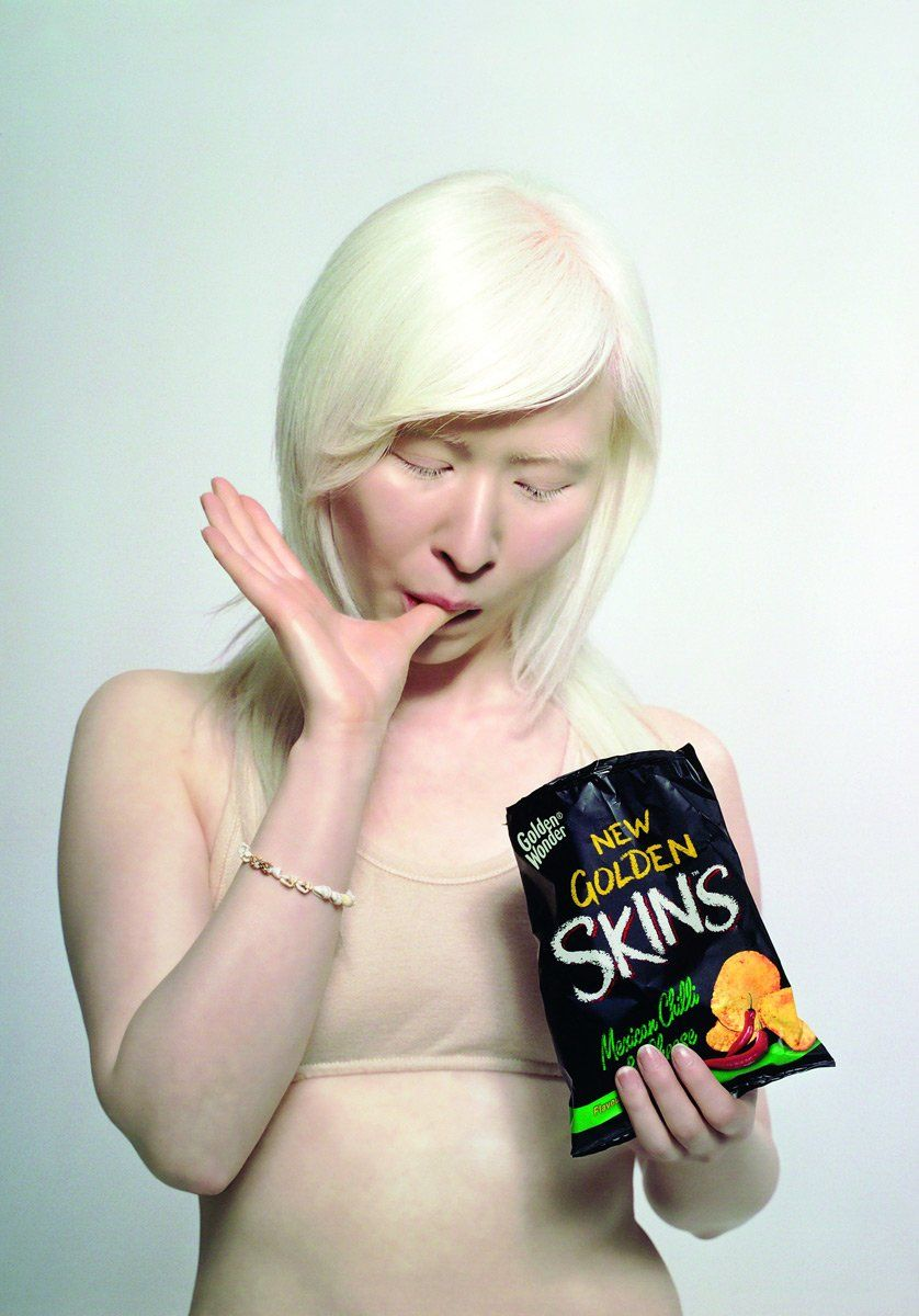 What does an albino person look like-7286