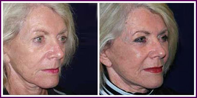 Patient Before And After MACS Facelift Plus Fat Transfer To Cheeks In Sydney By Dr Gerarchi Of The Face Institute Chatswood