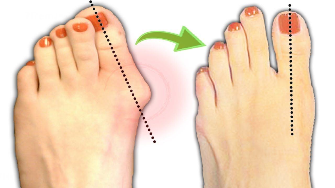 How to treat bunions naturally by as simple as following
