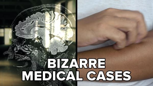 Buzzfeed 7 Rings: Bizarre Medical Cases That Will