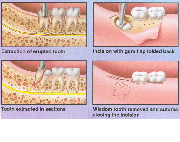 Wisdom Teeth Removal Wisdom Tooth Extraction Tooth Extraction Aftercare Wisdom Teeth
